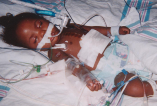 My baby had a 50/50 chance to live, her survival changed my life