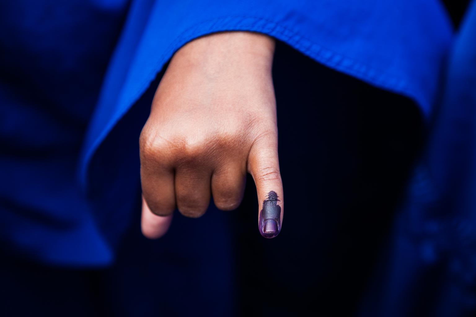 A girl in Somalia displays her ink-marked finger, demonstrating that she has been vaccinated against polio.