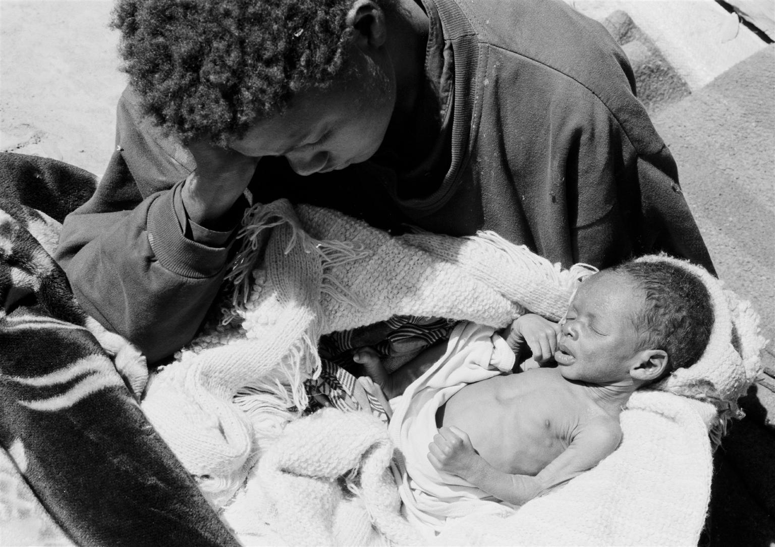Mother leaning over a malnourished baby on her lap