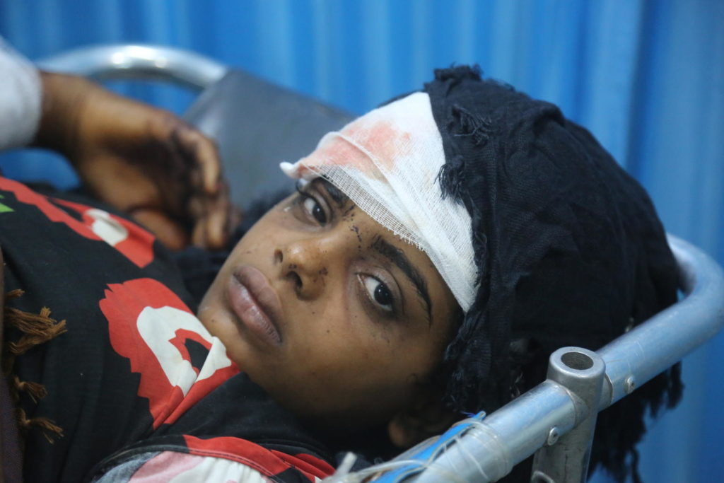 An injured girl with a bandaged forehead lying on a stretcher looks up.